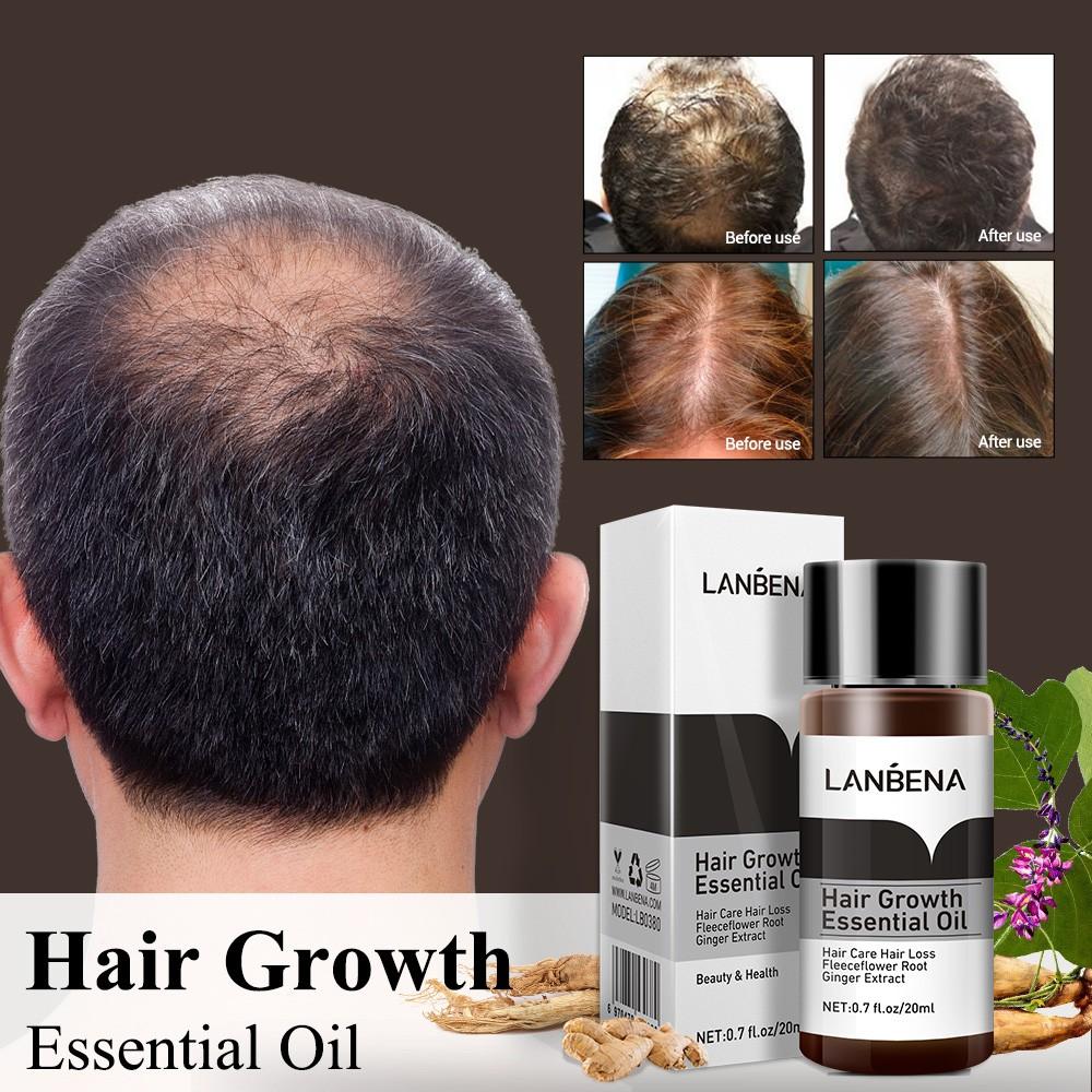 Tinh dầu kích thích mọc tóc LANBENA