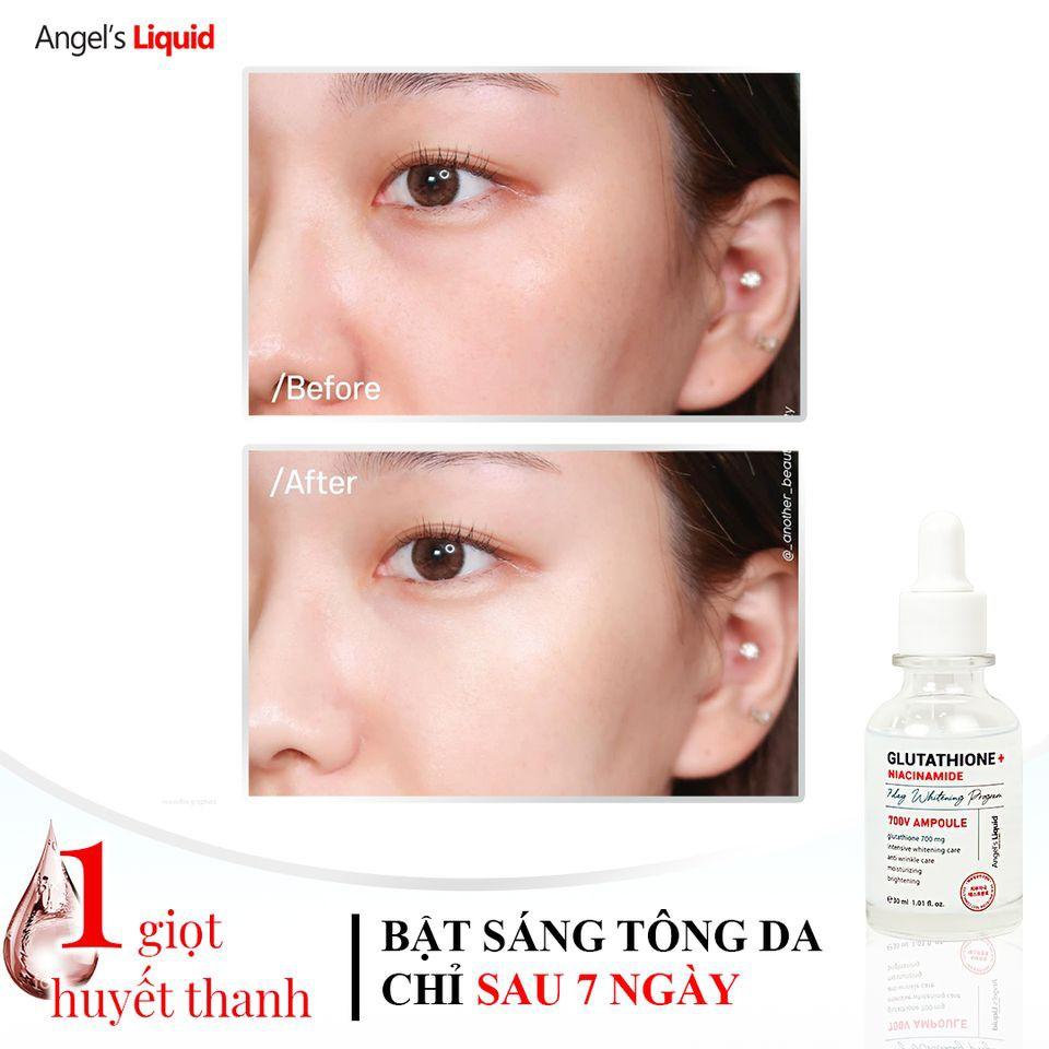 Huyết thanh truyền trắng, loại bỏ vết thâm nám Angel's Liquid Glutathione Plus Niacinamide 700 V-ampoule 30ml | Shopee Việt Nam