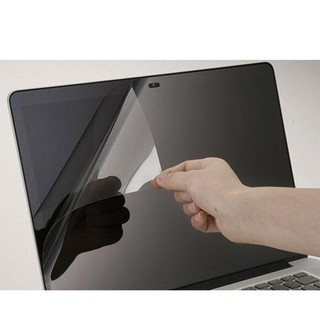 Miếng dán màn hình laptop chống bụi bẩn , xây xước , làm giảm tia bức xạ có hại từ máy tính youngcityshop 30.000 thumbnail
