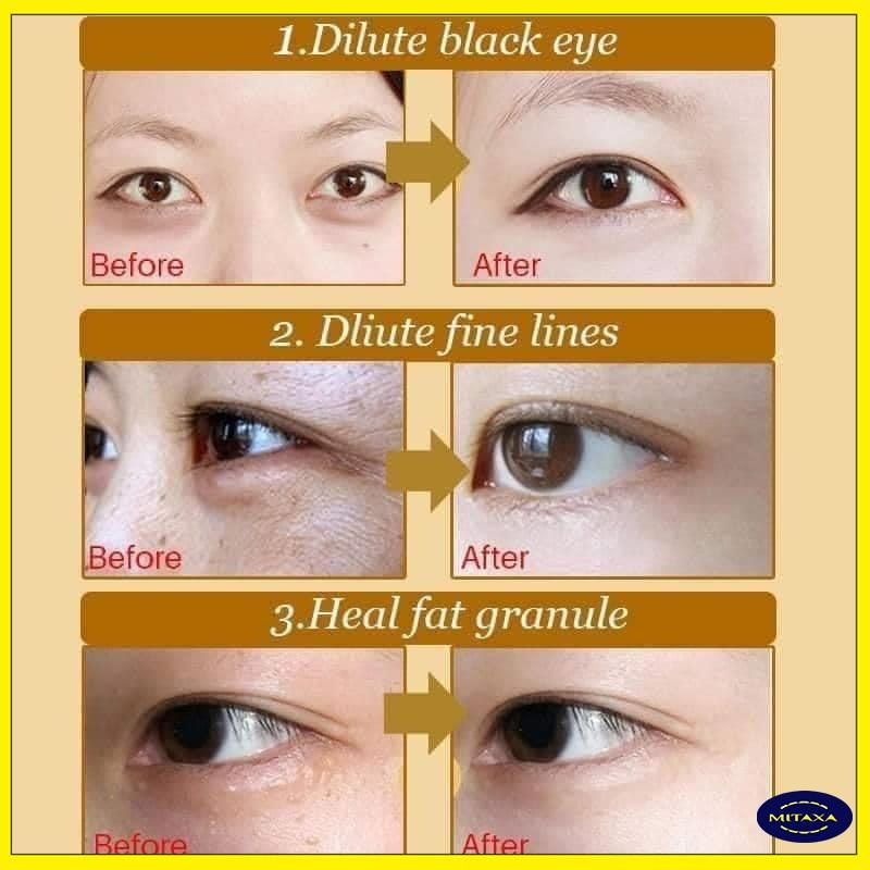 Mặt nạ mắt, dưỡng mắt - tinh chất collagen - MN08