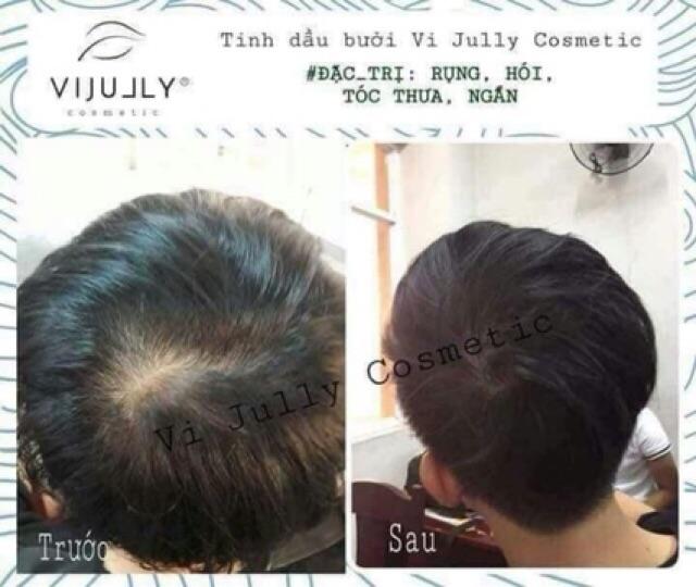 [Chính hãng] Tinh dầu bưởi Vijully kích thích mọc tóc