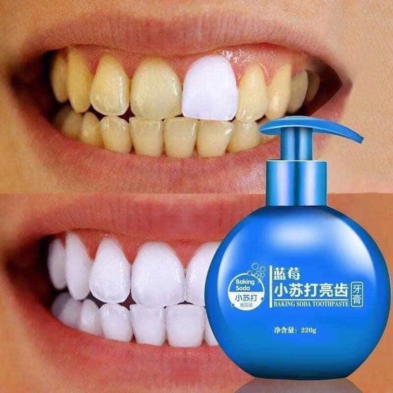 [ hàng sẵn ] KEM ĐÁNH RĂNG Baking soda toothpaste giúp răng chắc khỏe sáng bóng