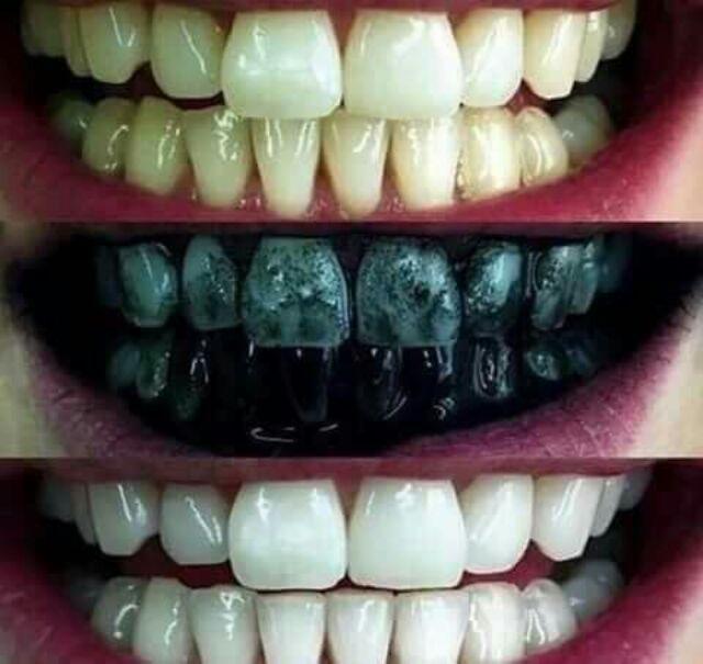 Bột than tre trắng răng, Than Tre hoạt tính tẩy trắng răng