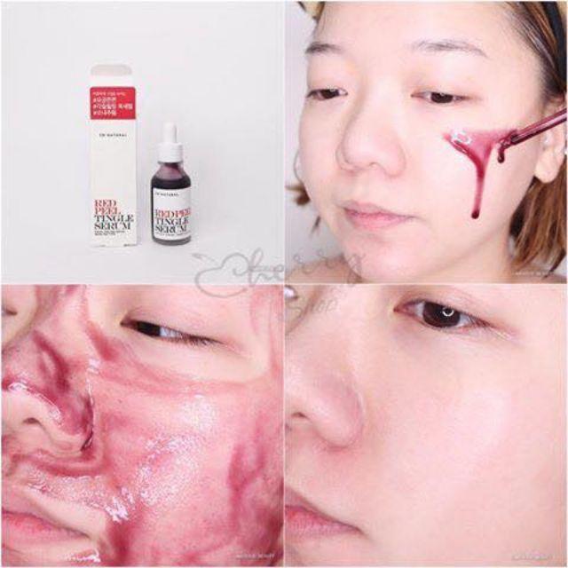 💚♣️ Gói dùng thử tinh chất Red Peel